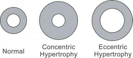Eccentric Concentric Hypertrophy