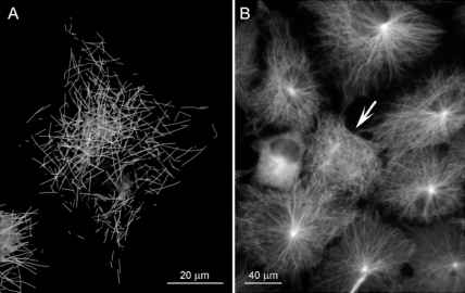 Centrosome Microtubules Imaging