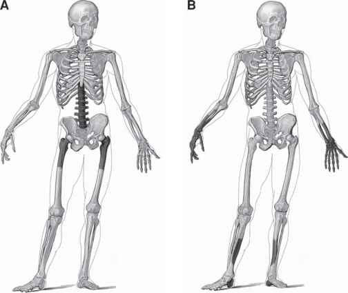 Central And Peripheral Skeleton