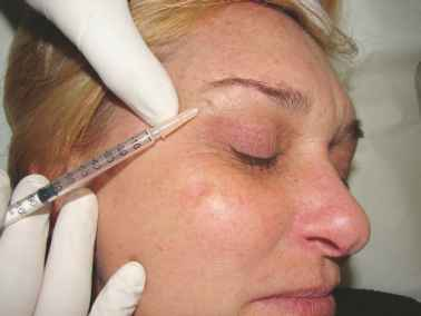 Inject Botox For Brow Lift Diagram