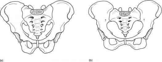 Male And Female Pelvis Differences