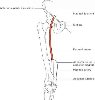 Mid Inguinal Point