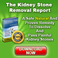 Kidney Stone Removal Manual by Joe Barton