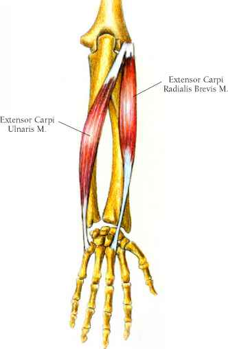 Cancer 5th Metacarpal
