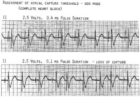 Pacemaker Loss Capture