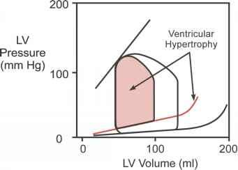 Cardiac Pressure Volume Curves