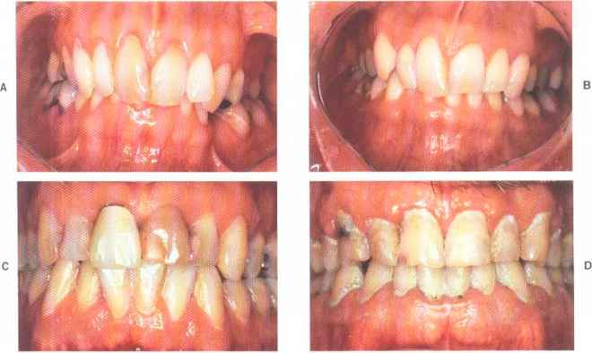 Periodontal Disease Year Old Woman