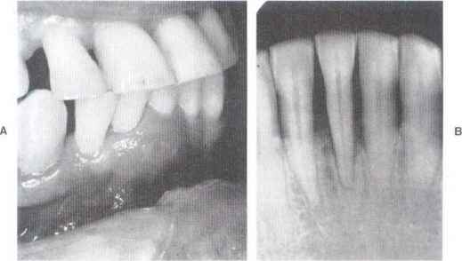 Periodontal Disease Probing