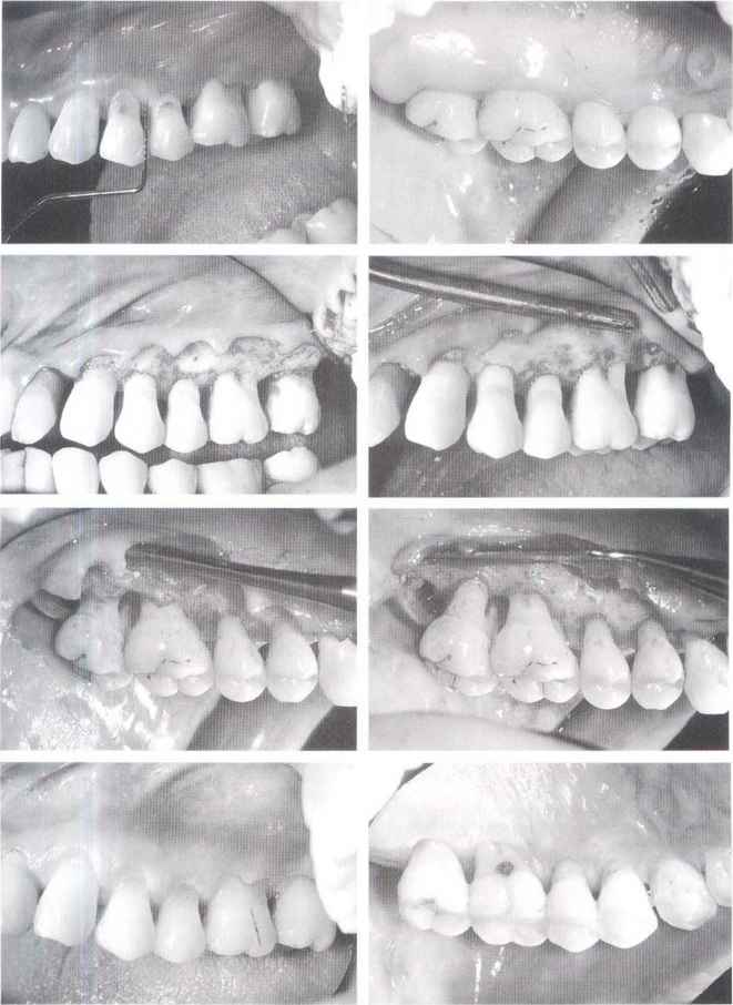Resective Periodontal Surgery