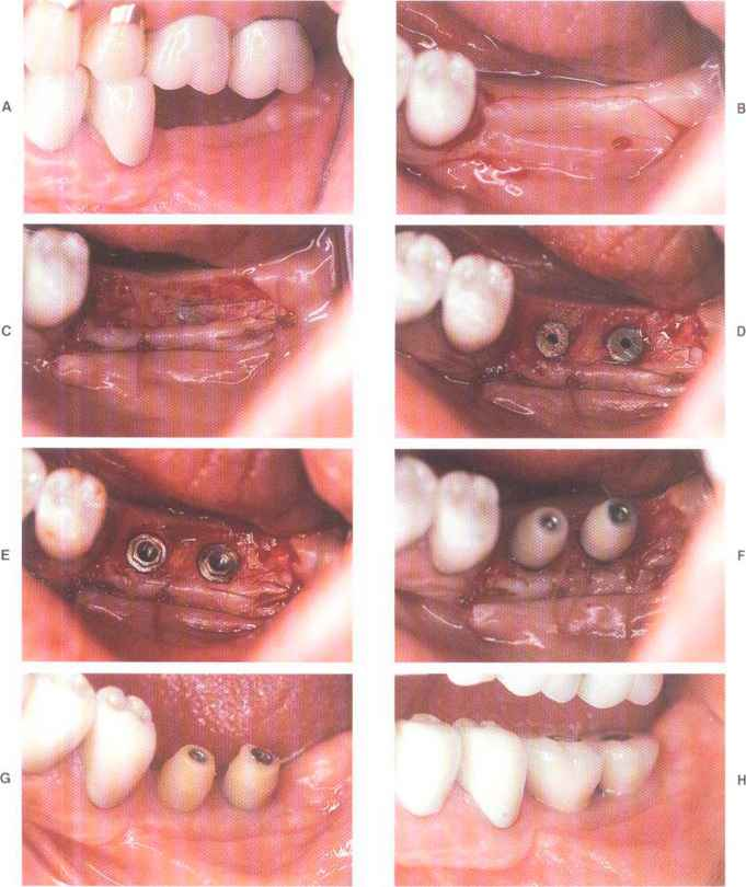 Stages Periodontal Disease