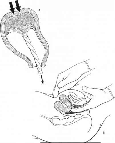 Inverted Uterus
