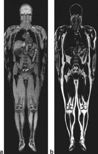 Body Fat Distribution Mri