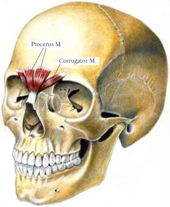 severe tighting in the sternohyoid muscle - muscle arises, Human Body