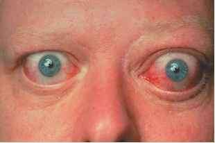 Conjunctival Injection Graves