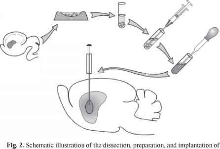 parkinsons disease and tissue transplants essay