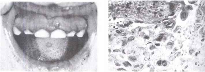 Primary Herpetic Gingivostomatitis
