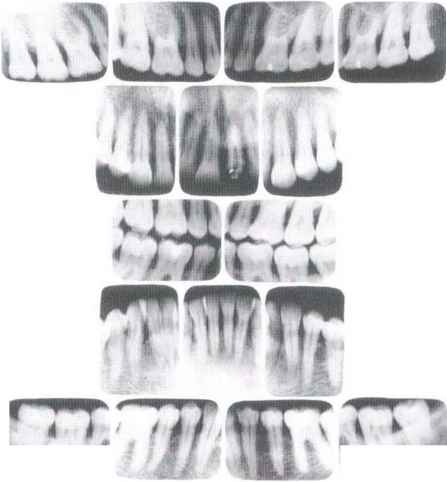 Generalized Periodontitis