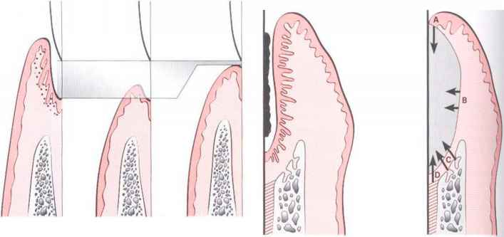 Healing After Periodontal Therapy - Periodontal Disease