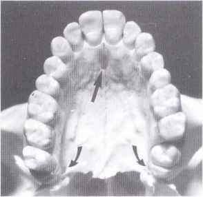 Maxilla - Periodontal Disease - Click to Cure Cancer