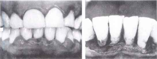 Periodontitis Before And After