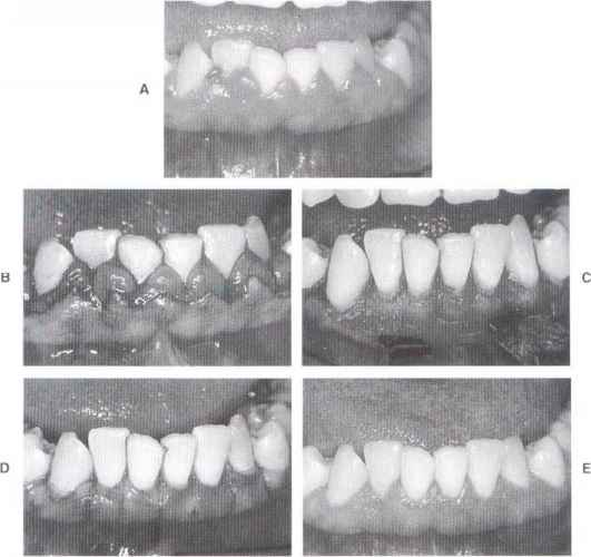 Chronic Periodontal Disease Localized