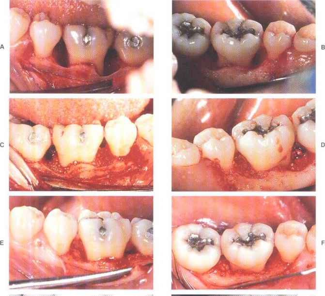 Periodontal Wall Defect Types