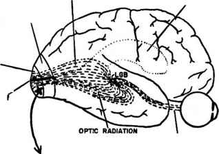 Ventricles Optic Radiation