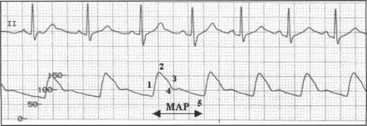 The cardiac cycle - Transcranial Doppler - Click to Cure..