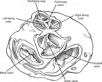 Anatomy Of The Right Ventricular Outflow Tract Ventricular Outflow