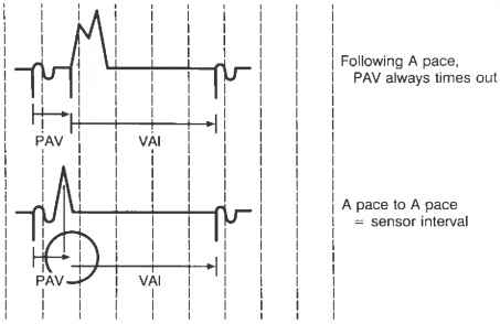 Atrial Based Timing