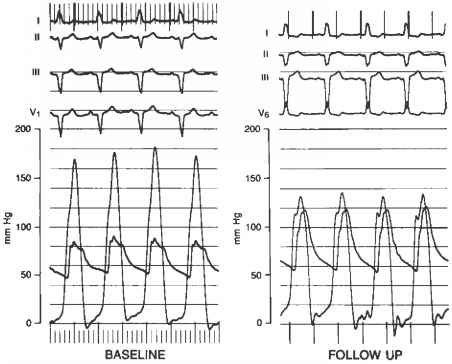 Pacing Hypertrophic Cardiomyopathy