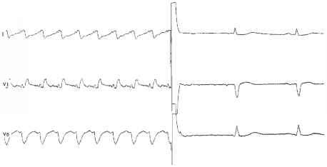 Ventricular Fibrillation Cardioversion