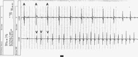 Pacemaker Mediated Tachycardia Icd